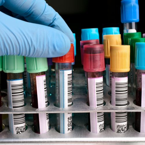 hand holding a tube labeled of the rack with other tests / hand holding Blood tests